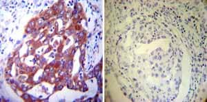 Immunohistochemistry (Formalin/PFA-fixed paraffin-embedded sections) - Anti-P4HB antibody [RL90] (ab2792)