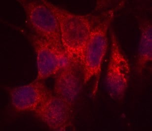 Immunocytochemistry/ Immunofluorescence - Anti-PDI antibody [RL90] (ab2792)