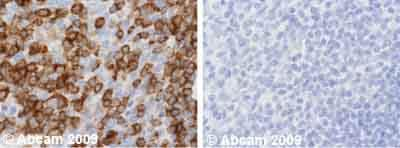 Immunohistochemistry (Formalin/PFA-fixed paraffin-embedded sections) - Anti-NFAT2 antibody [7A6] (ab2796)