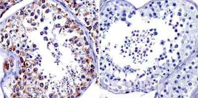 Immunohistochemistry (Formalin/PFA-fixed paraffin-embedded sections) - Anti-Grp75/MOT antibody [JG1] (ab2799)