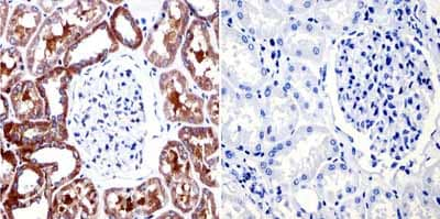 Immunohistochemistry (Formalin/PFA-fixed paraffin-embedded sections) - Anti-Muscarinic Acetylcholine Receptor 2/CM2 antibody [31-1D1] (ab2805)