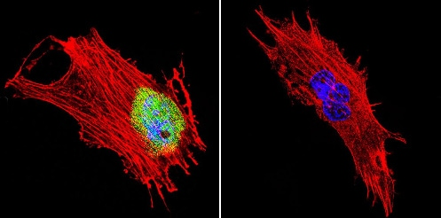 Immunocytochemistry/ Immunofluorescence - Anti-CRABP1 [C-1] antibody (ab2816)