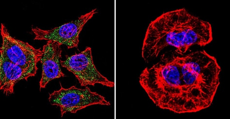 Immunocytochemistry/ Immunofluorescence - Anti-SERCA1 ATPase antibody [VE121G9] (ab2819)