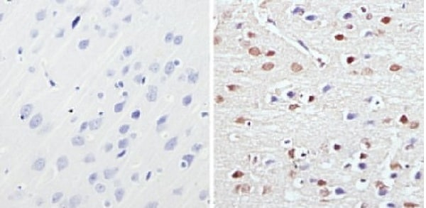 Immunohistochemistry (Formalin/PFA-fixed paraffin-embedded sections) - Anti-MeCP2 antibody (ab2828)