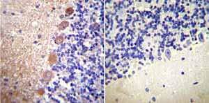 Immunohistochemistry (Formalin/PFA-fixed paraffin-embedded sections) - Anti-Calmodulin 1/2/3 antibody [2D1] (ab2860)