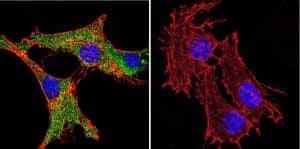 Immunocytochemistry - Anti-Calmodulin 1/2/3 antibody [2D1] (ab2860)