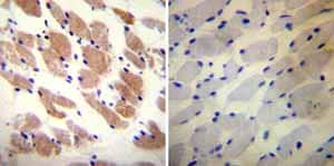 Immunohistochemistry (Formalin/PFA-fixed paraffin-embedded sections) - Anti-Ryanodine Receptor antibody [34C] (ab2868)