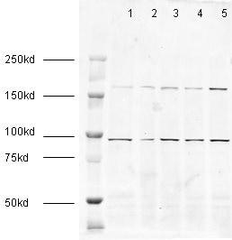 Western blot - Anti-EEA1 antibody - Early Endosome Marker (ab2900)