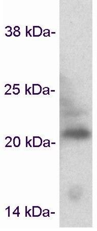 Western blot - Anti-Caveolin-3 antibody - Caveolae Marker (ab2912)