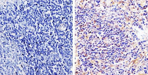 Immunohistochemistry (Formalin/PFA-fixed paraffin-embedded sections) - Anti-pan Arrestin antibody (ab2914)