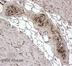 Immunohistochemistry (Formalin/PFA-fixed paraffin-embedded sections) - FKBP12 antibody (ab2918)