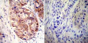 Immunohistochemistry (Formalin/PFA-fixed paraffin-embedded sections) - Anti-Hsp90 alpha antibody (ab2928)