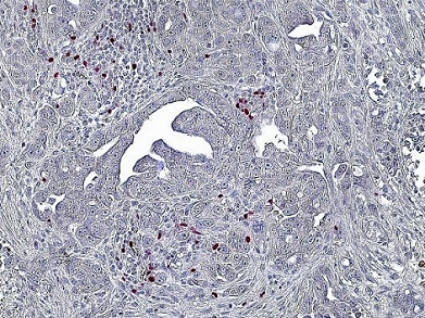 Immunohistochemistry (Formalin/PFA-fixed paraffin-embedded sections) - Anti-FOXP3 antibody [236A/E7] (ab20034)