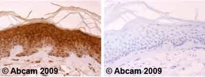 Immunohistochemistry (Formalin/PFA-fixed paraffin-embedded sections) - Anti-Involucrin antibody [SY8] (ab20202)