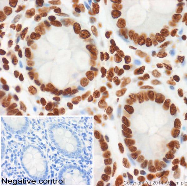 Immunohistochemistry (Formalin/PFA-fixed paraffin-embedded sections) - Anti-Histone H2A.X antibody - ChIP Grade (ab20669)