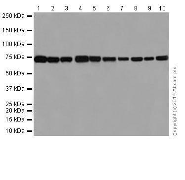 Western blot - Anti-SLC25A12 antibody [EPR16294] (ab200201)