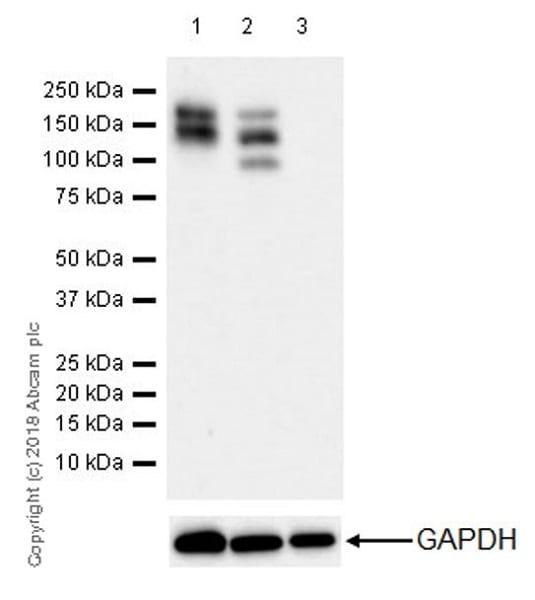 Western blot - Anti-PDGFR alpha antibody [EPR22059-270] (ab203491)