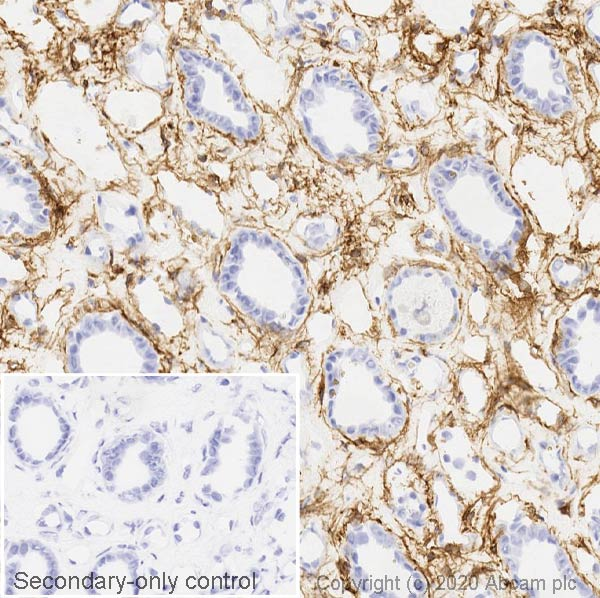 Immunohistochemistry (Frozen sections) - Anti-PDGFR alpha antibody [EPR22059-270] (ab203491)