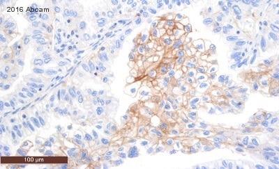 免疫组织化学(福尔马林/PFA固定石蜡切片)-抗PD-L1抗体[28-8](ab205921)