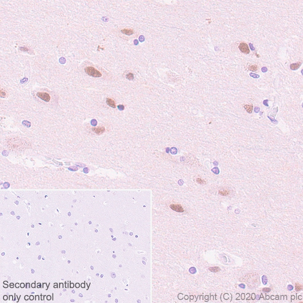 Immunohistochemistry paraffin embedded sections - Rabbit specific IHC polymer detection kit HRP/DAB (ab209101)