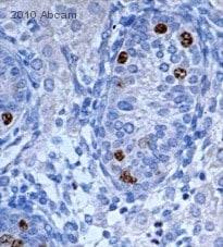 Immunohistochemistry (Formalin/PFA-fixed paraffin-embedded sections) - Anti-Nanog antibody - ChIP Grade (ab21624)