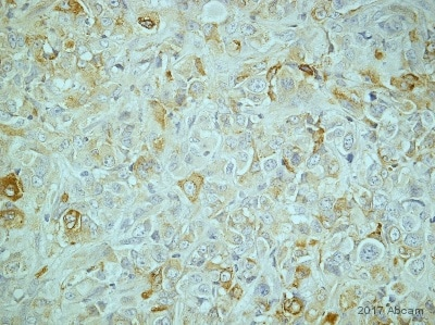Immunohistochemistry (Formalin/PFA-fixed paraffin-embedded sections) - Anti-GRP78 BiP antibody (ab21685)