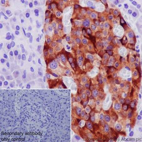 Immunohistochemistry (Formalin/PFA-fixed paraffin-embedded sections) - Anti-TIMP1 antibody [EPR18352] (ab211926)