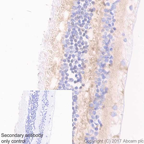 Immunohistochemistry (Formalin/PFA-fixed paraffin-embedded sections) - Anti-Optineurin antibody [EPR20654] (ab213556)