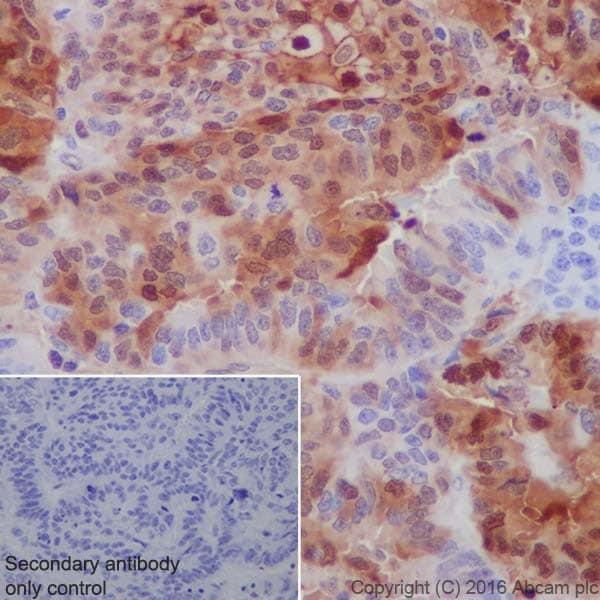 Immunohistochemistry (Formalin/PFA-fixed paraffin-embedded sections) - Anti-Annexin A1/ANXA1 antibody [EPR19342] (ab214486)