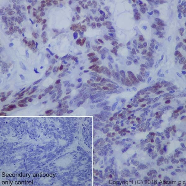 Immunohistochemistry (Formalin/PFA-fixed paraffin-embedded sections) - Anti-KLF4 antibody [EPR19590] (ab215036)