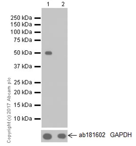 Western blot - Anti-DFNA5/GSDME antibody [EPR19859] - N-terminal (ab215191)