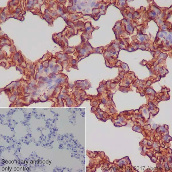 Immunohistochemistry (Formalin/PFA-fixed paraffin-embedded sections) - Anti-RAGE antibody [EPR21171] (ab216329)