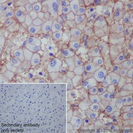 Immunohistochemistry (Formalin/PFA-fixed paraffin-embedded sections) - Anti-Scavenging Receptor SR-BI antibody [EPR20190] (ab217318)