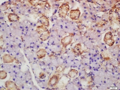 Immunohistochemistry (Formalin/PFA-fixed paraffin-embedded sections) - Anti-Axin 2 antibody (ab218023)