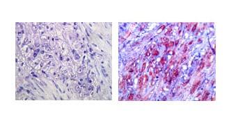 Immunohistochemistry (Formalin/PFA-fixed paraffin-embedded sections) - Anti-TLR4 antibody [76B357.1] (ab22048)