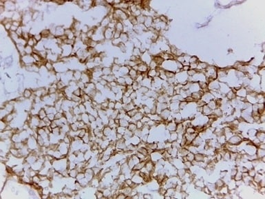 Immunohistochemistry (Frozen sections) - Anti-ErbB 2 antibody [ICR52] (ab22494)