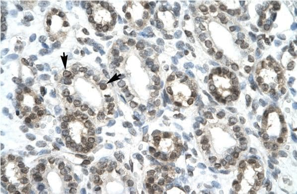 Immunohistochemistry (Formalin/PFA-fixed paraffin-embedded sections) - Anti-HEY1 antibody (ab22614)
