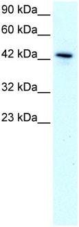 Western blot - Anti-KLF15 antibody (ab22851)