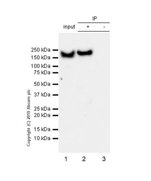 Immunoprecipitation - Anti-YTHDC2 antibody [EPR21820-49] (ab220160)