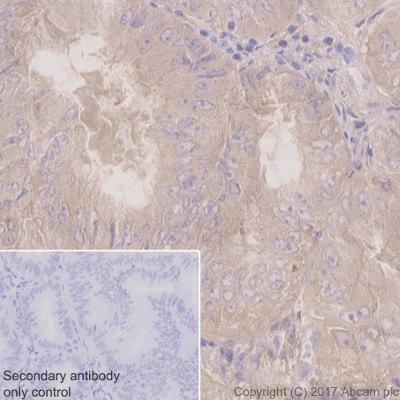免疫组织化学(福尔马林/PFA固定石蜡包埋切片)-抗PKCα抗体[Y124]-BSA和叠氮(ab221611)