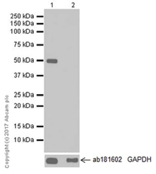 Western blot - Anti-DFNA5/GSDME antibody [EPR19859-60] - C-terminal (ab221843)