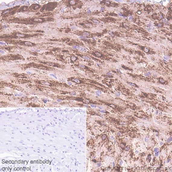 Immunohistochemistry (Formalin/PFA-fixed paraffin-embedded sections) - Anti-Natriuretic peptides A antibody [EPR22089-283] (ab225844)
