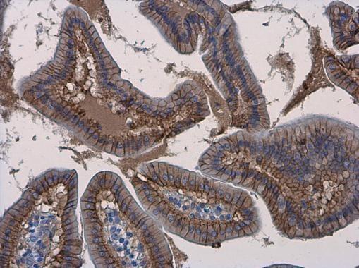 Immunohistochemistry (Formalin/PFA-fixed paraffin-embedded sections) - Anti-beta Catenin antibody - ChIP Grade (ab227499)