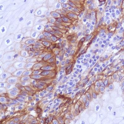 Immunohistochemistry (Formalin/PFA-fixed paraffin-embedded sections) - Anti-CD276 antibody [SP265] - C-terminal (ab227679)