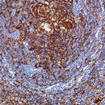 Immunohistochemistry (Formalin/PFA-fixed paraffin-embedded sections) - Anti-TMEM173 antibody [SP338] (ab227704)