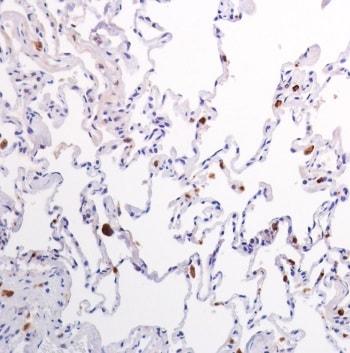 Immunohistochemistry (Formalin/PFA-fixed paraffin-embedded sections) - Anti-Lysozyme antibody [SP350] - C-terminal (ab227708)