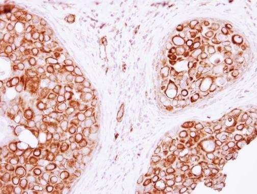 Immunohistochemistry (Formalin/PFA-fixed paraffin-embedded sections) - Anti-VAM1 antibody (ab229270)