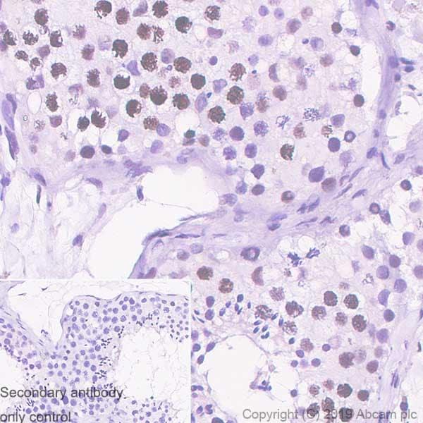 Immunohistochemistry (Formalin/PFA-fixed paraffin-embedded sections) - Anti-Histone H2A.X antibody [EPR22820-23] - ChIP Grade (ab229914)