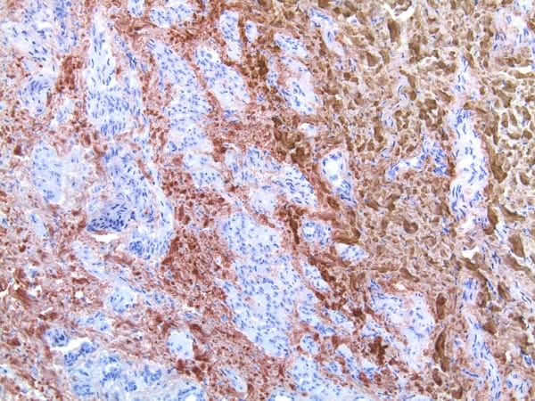 Immunohistochemistry (Frozen sections) - Anti-Collagen I [5D8-G9/Col1] antibody (ab23446)