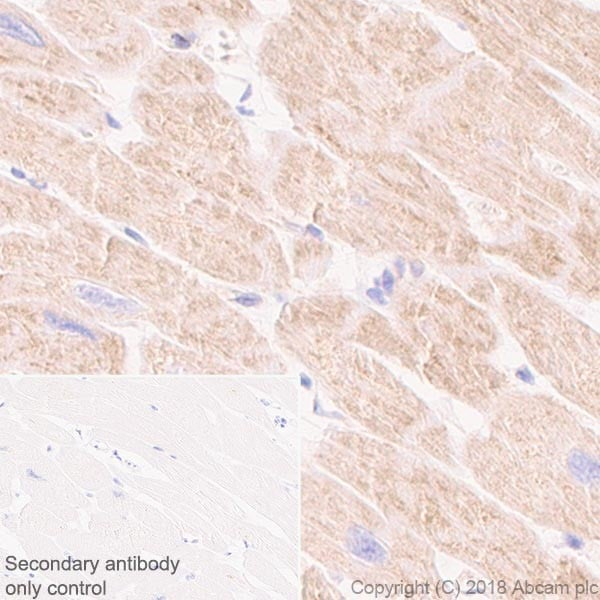 Immunohistochemistry (Formalin/PFA-fixed paraffin-embedded sections) - Anti-CPT1A antibody [EPR21843-71-2F] (ab234111)
